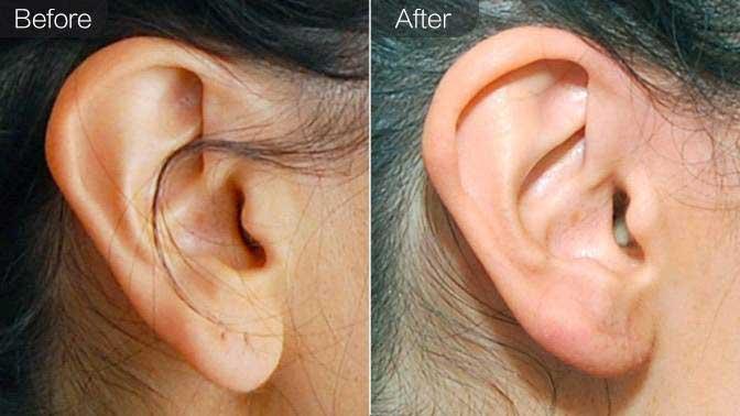 玻尿酸丰耳垂前后对比效果图