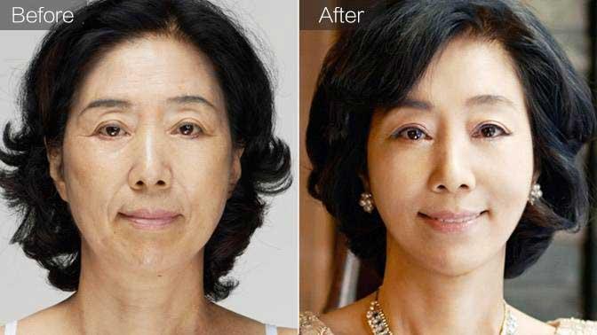 玻尿酸除皱前后效果对比图