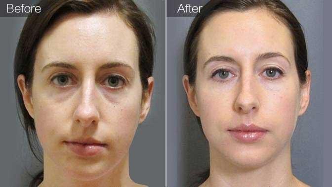 玻尿酸填泪沟前后对比效果图