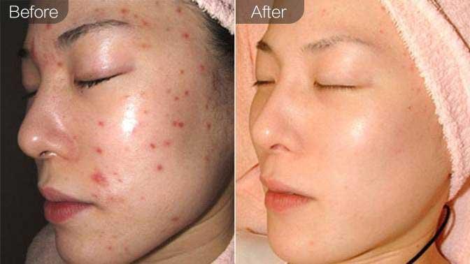 果酸&杏仁酸焕肤前后对比效果图