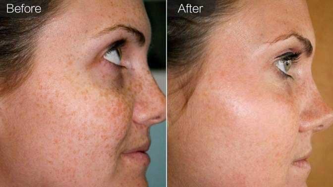 中药祛斑前后效果对比图