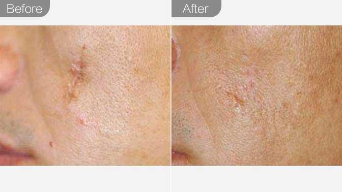 手术祛疤前后效果对比图