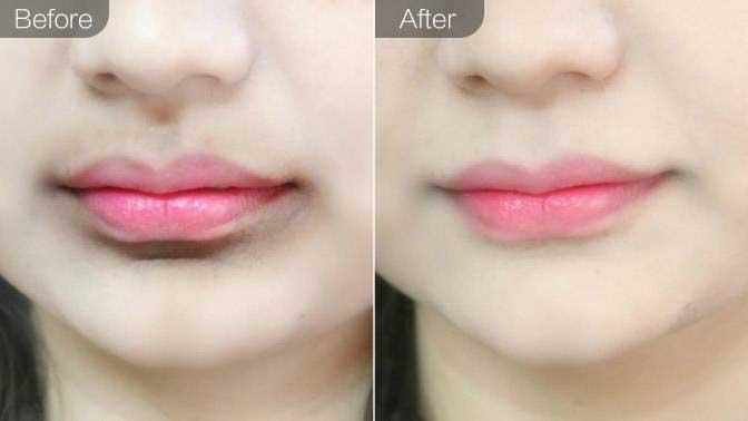 洗唇线前后对比效果图