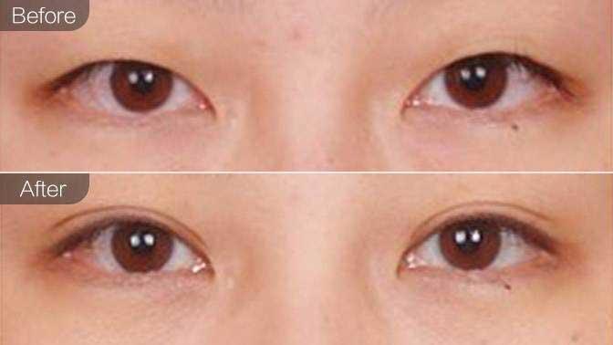 眼综合整形前后效果对比图