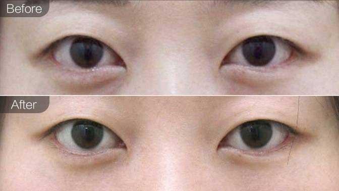 内切去眼袋前后效果对比图