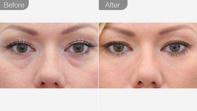 光纤溶脂去眼袋前后对比效果图