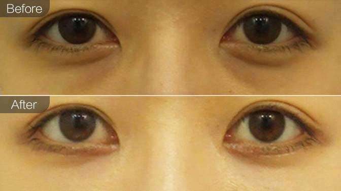 激光去黑眼圈前后效果对比图