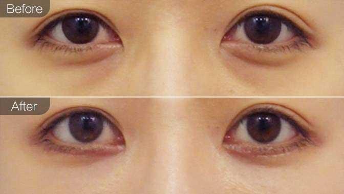 玻尿酸去黑眼圈前后效果对比图