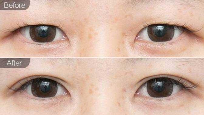 双眼皮修复前后效果对比图