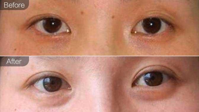 内眼角修复前后效果对比图