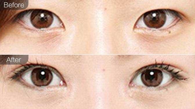 外眼角修复前后效果对比图