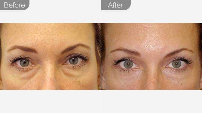 眼袋修复前后效果对比图
