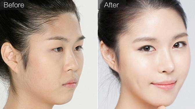 硅胶假体隆鼻前后效果对比图