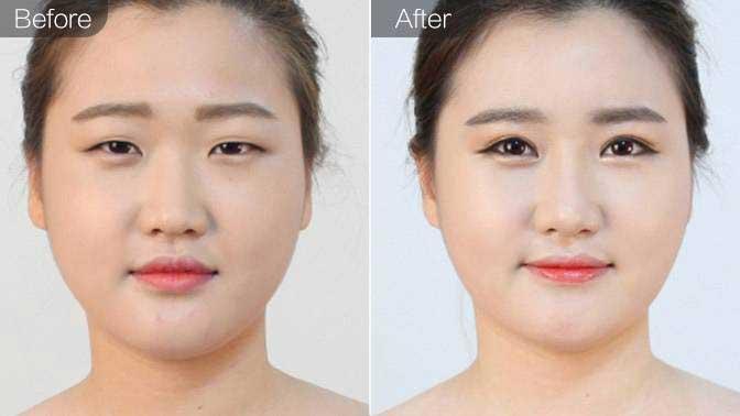 膨体假体隆鼻前后效果对比图
