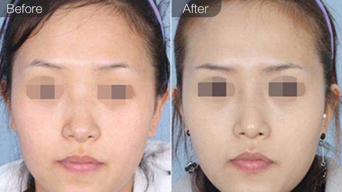 自体脂肪隆鼻前后效果对比图