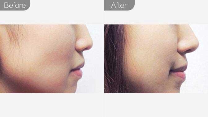 玻尿酸隆鼻前后效果对比图