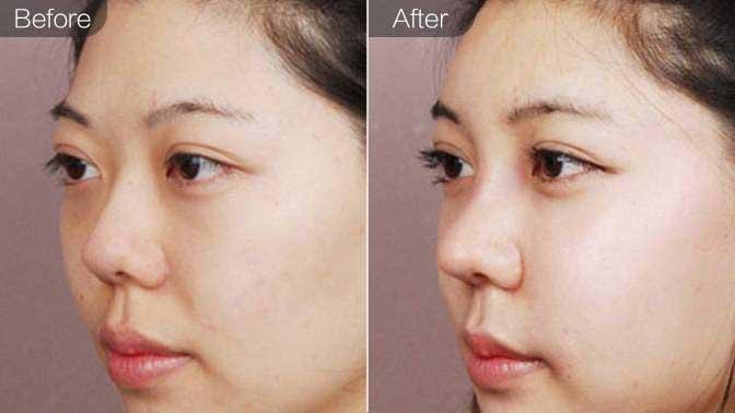 线雕隆鼻前后效果对比图