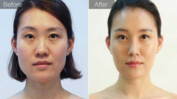 曼特波假体隆鼻前后效果对比图