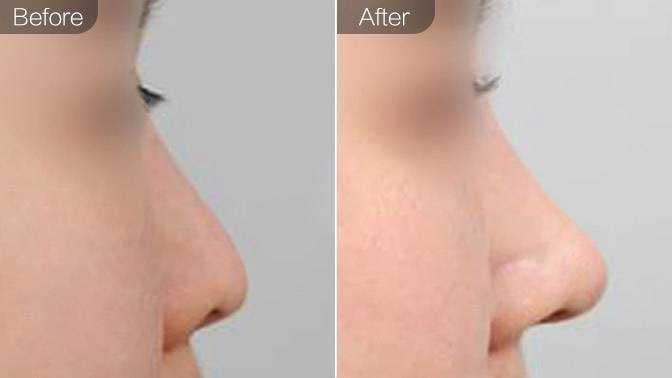 鼻中隔软骨隆鼻前后对比效果图