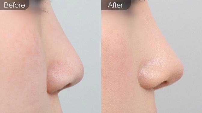 自体耳软骨隆鼻前后效果对比图