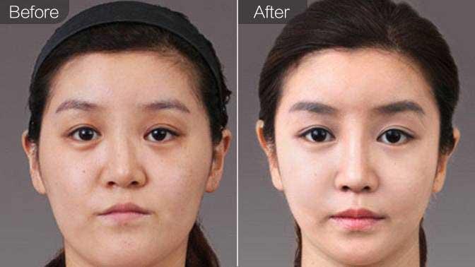 鼻综合整形前后效果对比图