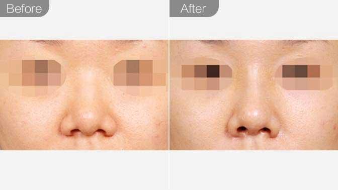 手术缩鼻翼前后效果对比图