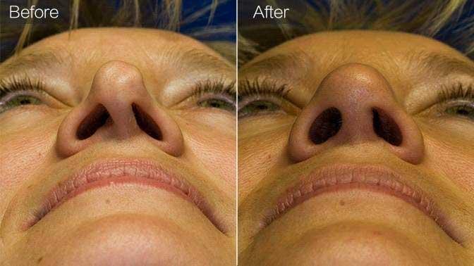 鼻孔矫正前后效果对比图