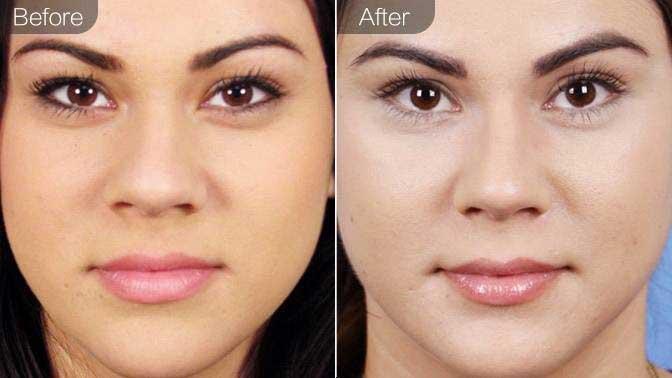 除皱针缩鼻头前后效果对比图