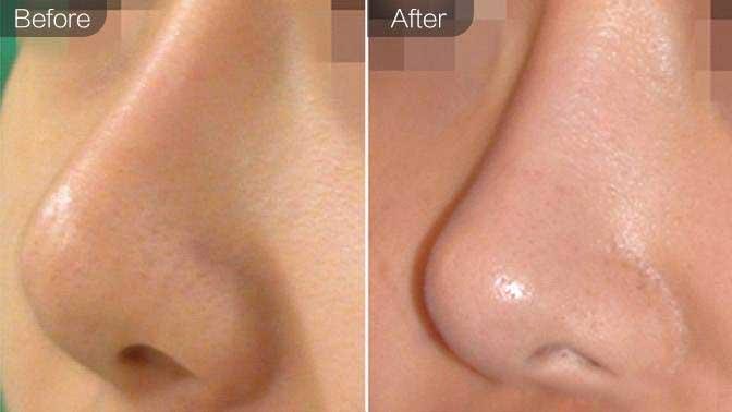 手术缩鼻头前后对比效果图