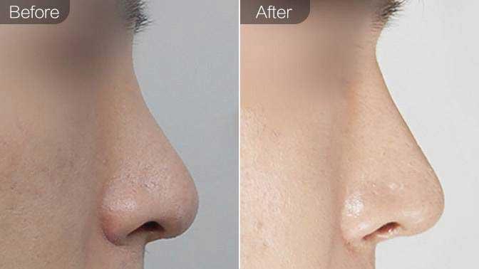 手术延长鼻小柱前后对比效果图