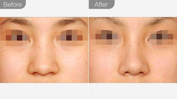 宽鼻矫正前后效果对比图