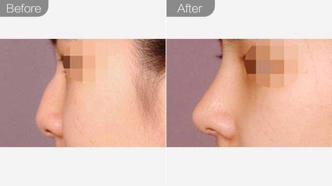 驼峰鼻矫正前后效果对比图