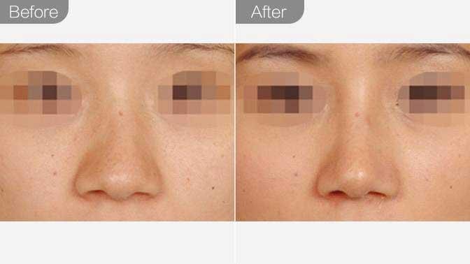 歪鼻矫正前后效果对比图
