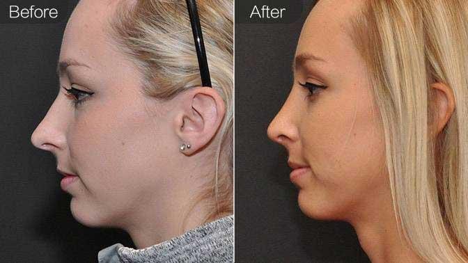 长鼻矫正前后效果对比图