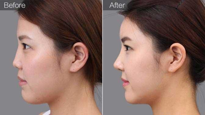 玻尿酸丰鼻基底前后效果对比图
