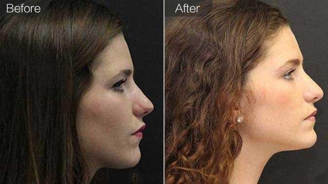 自体脂肪丰鼻基底前后效果对比图