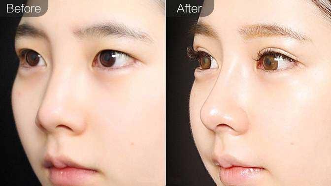 自体软骨垫鼻尖前后效果对比图