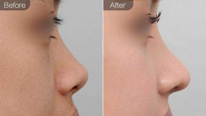 自体真皮垫鼻尖前后效果对比图