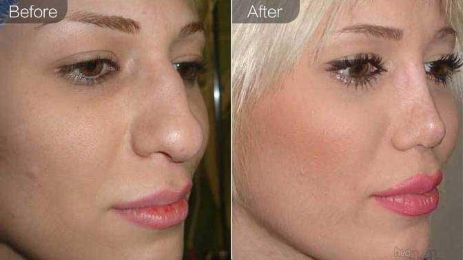 假体隆鼻修复前后效果对比图