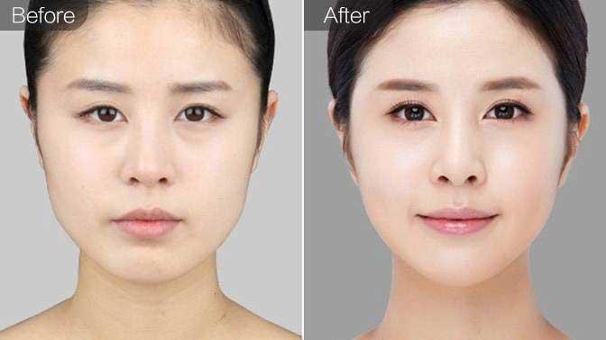 磨下颌角前后效果对比图