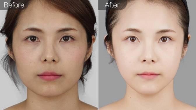V-LINE瓜子脸手术前后对比效果图