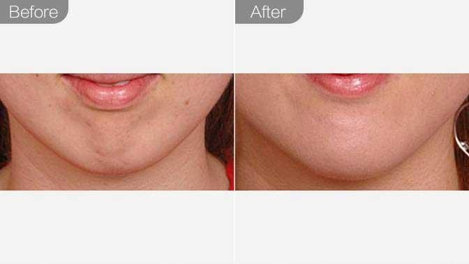 自体脂肪丰下巴前后效果对比图