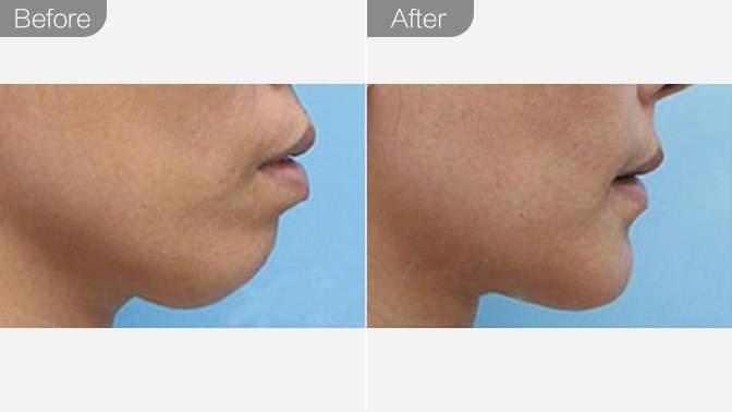 硅胶假体垫下巴前后对比效果图