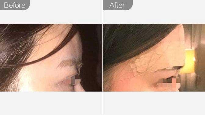玻尿酸隆眉弓前后对比效果图