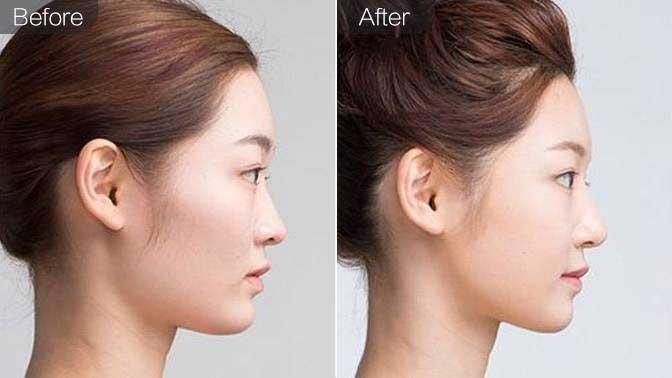 玻尿酸丰面颊前后效果对比图