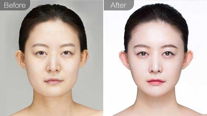 瘦脸针前后效果对比图