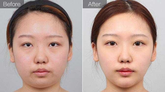 激光溶脂瘦脸前后对比效果图