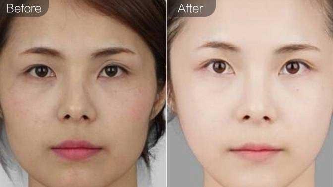 射频溶脂瘦脸效果图
