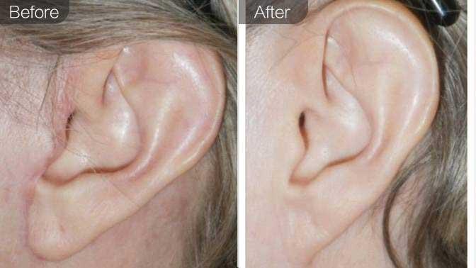 招风耳矫正前后对比效果图