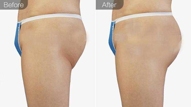 自体脂肪丰臀前后对比效果图